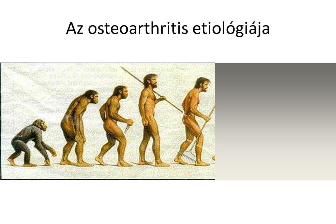 Az osteoarthritis etiológiája