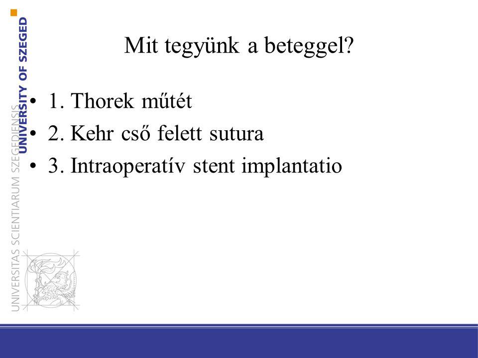 Mit tegyünk a beteggel 1. Thorek műtét 2. Kehr cső felett sutura