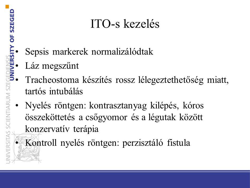 ITO-s kezelés Sepsis markerek normalizálódtak Láz megszűnt