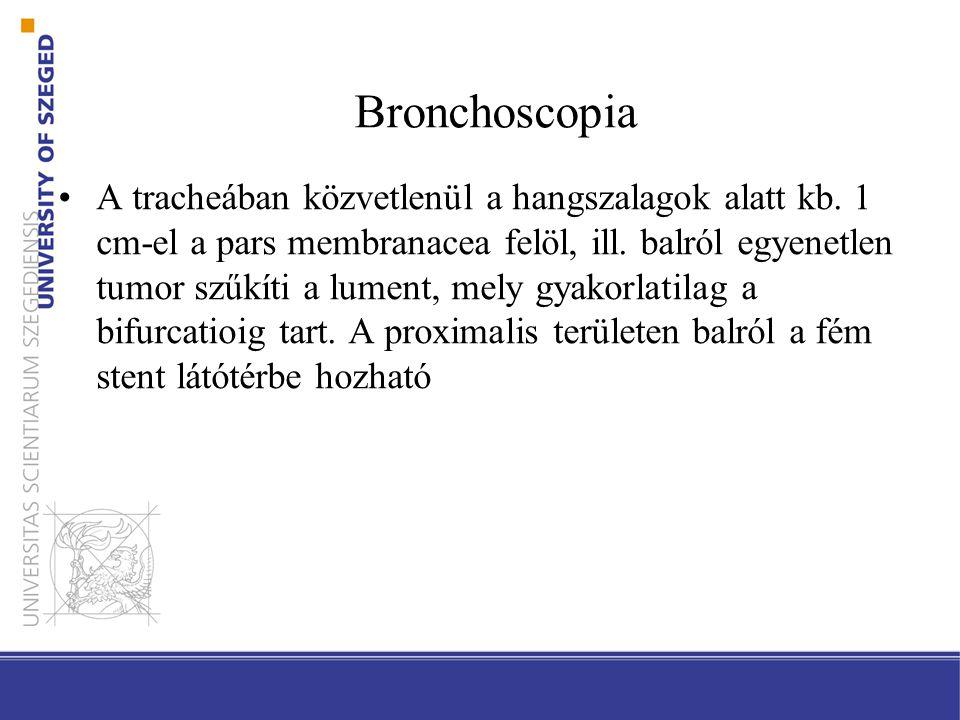 Bronchoscopia