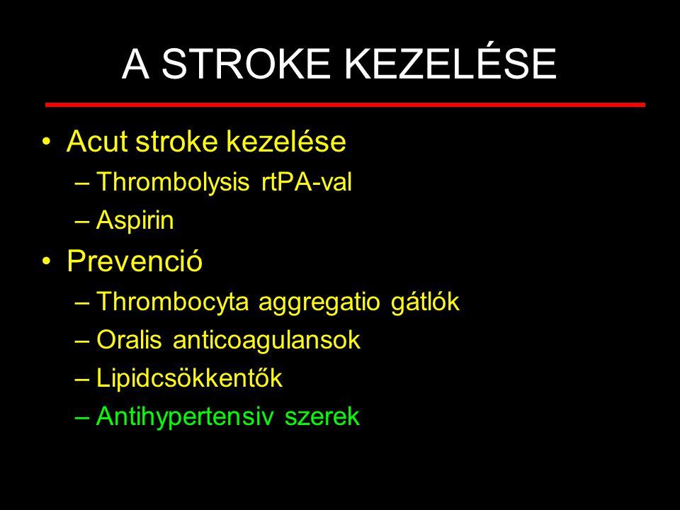 A STROKE KEZELÉSE Acut stroke kezelése Prevenció Thrombolysis rtPA-val