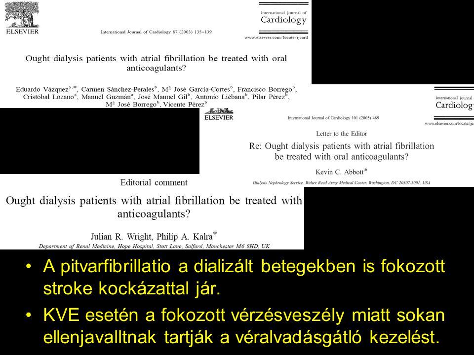 A pitvarfibrillatio a dializált betegekben is fokozott stroke kockázattal jár.
