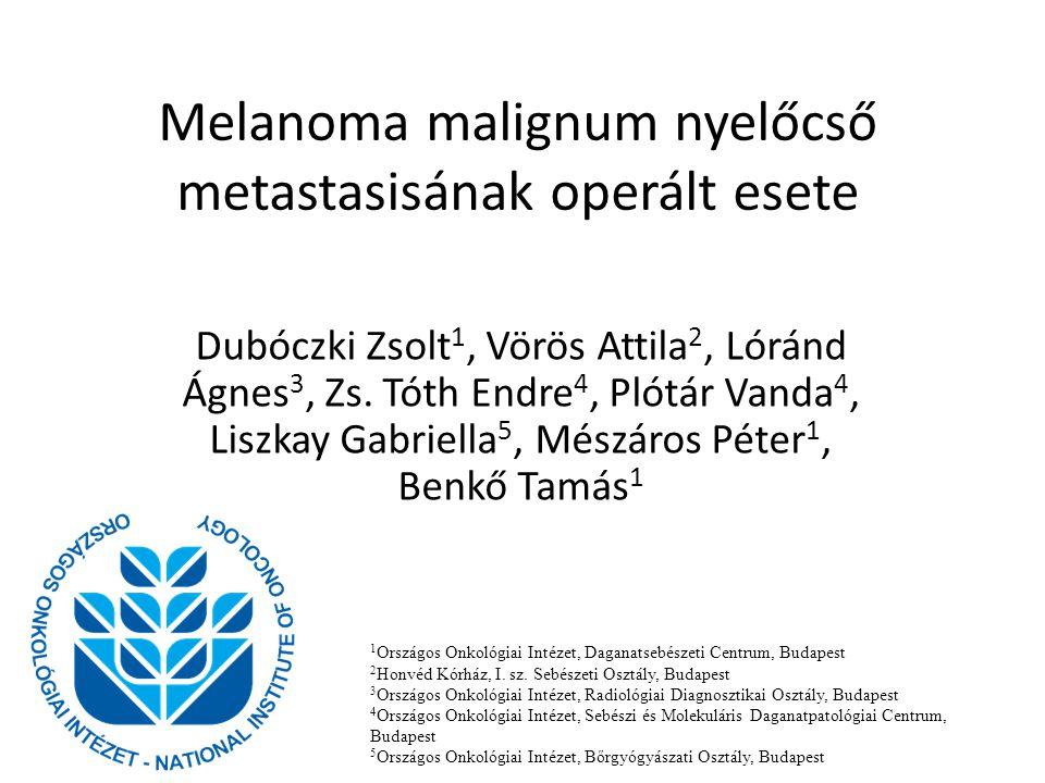 Melanoma malignum nyelőcső metastasisának operált esete