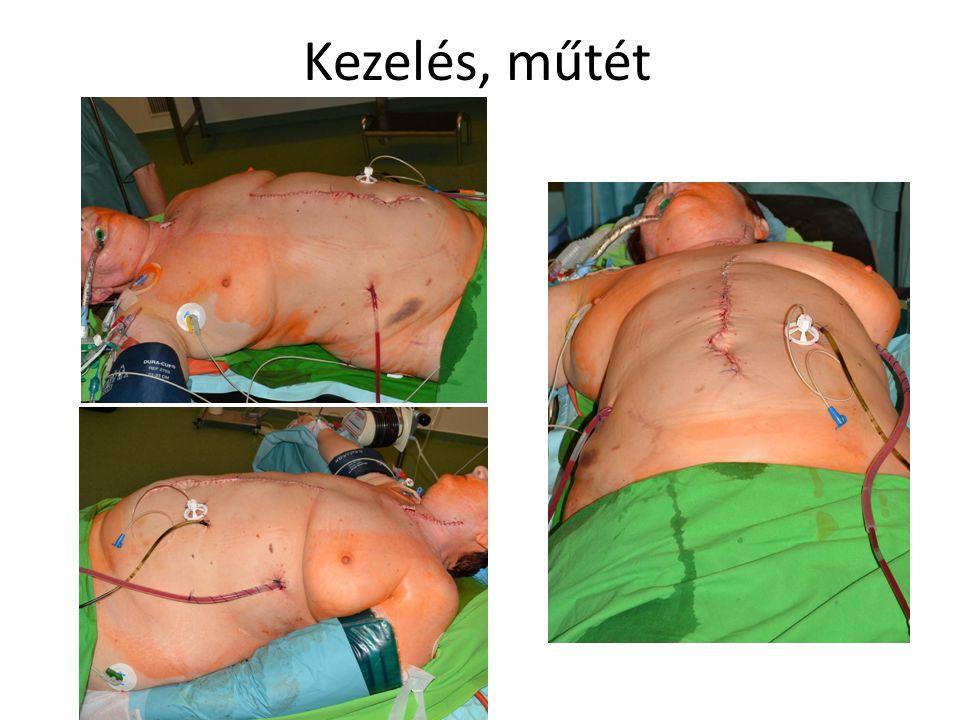 Kezelés, műtét