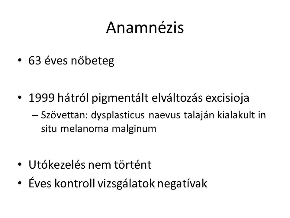 Anamnézis 63 éves nőbeteg 1999 hátról pigmentált elváltozás excisioja