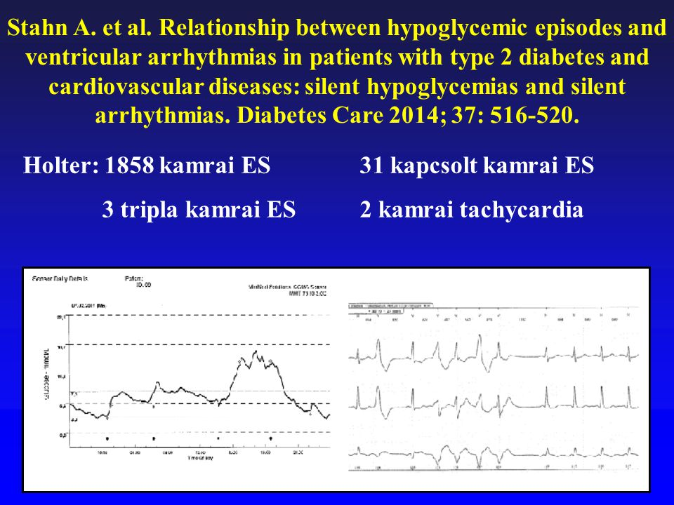 Stahn A. et al. Relationship between hypoglycemic episodes and ventricular arrhythmias in patients with type 2 diabetes and cardiovascular diseases: silent hypoglycemias and silent arrhythmias. Diabetes Care 2014; 37: 516-520.