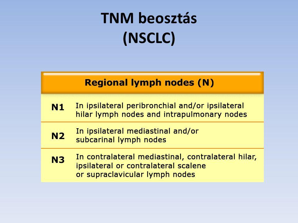 TNM beosztás (NSCLC)