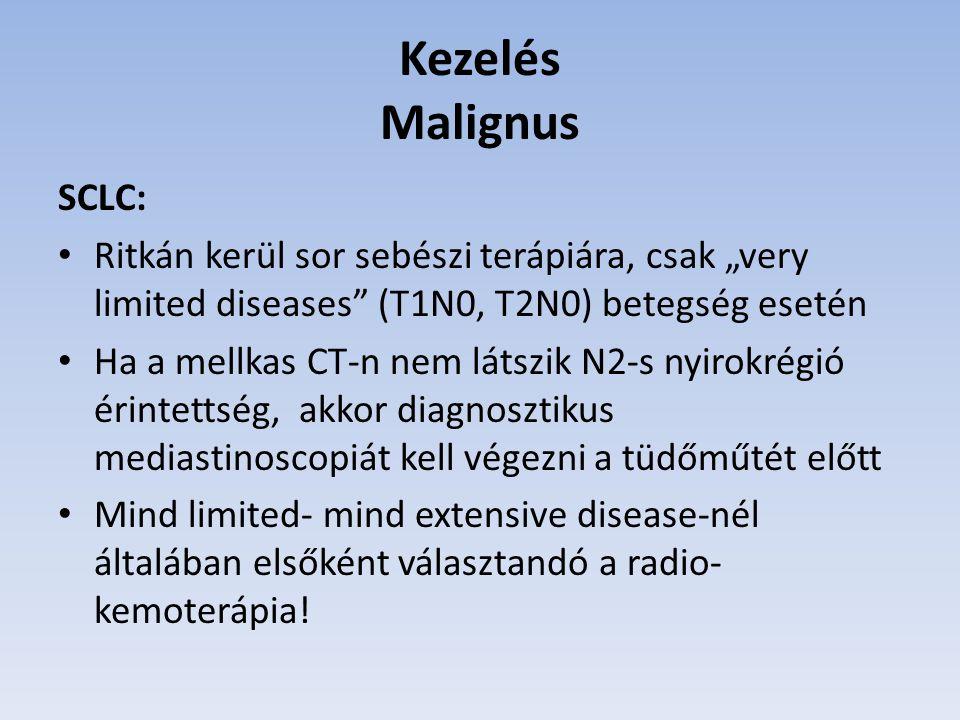 Kezelés Malignus SCLC: