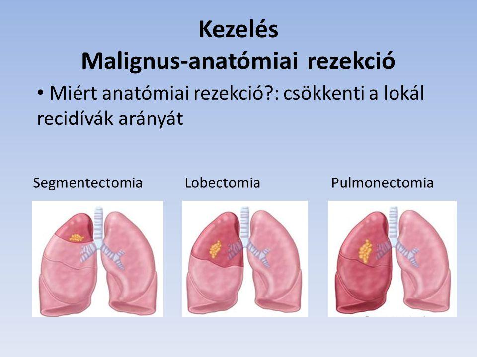 Kezelés Malignus-anatómiai rezekció