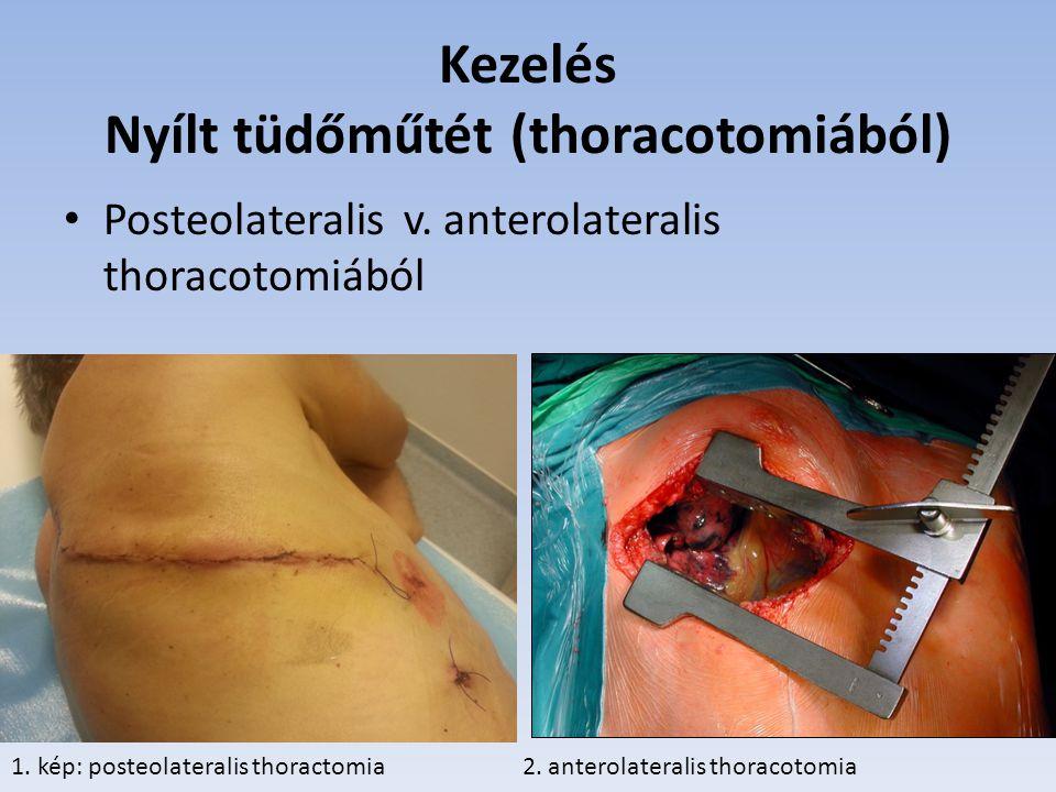 Kezelés Nyílt tüdőműtét (thoracotomiából)
