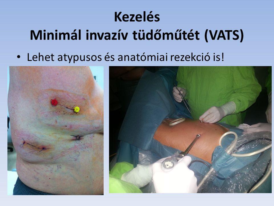 Kezelés Minimál invazív tüdőműtét (VATS)