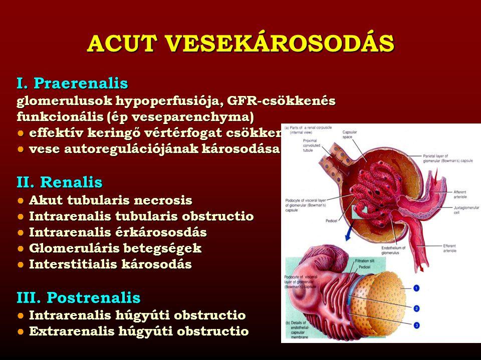 ACUT VESEKÁROSODÁS I. Praerenalis II. Renalis III. Postrenalis