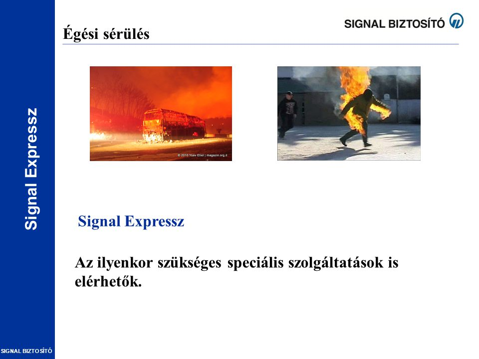 Égési sérülés Signal Expressz Az ilyenkor szükséges speciális szolgáltatások is elérhetők.