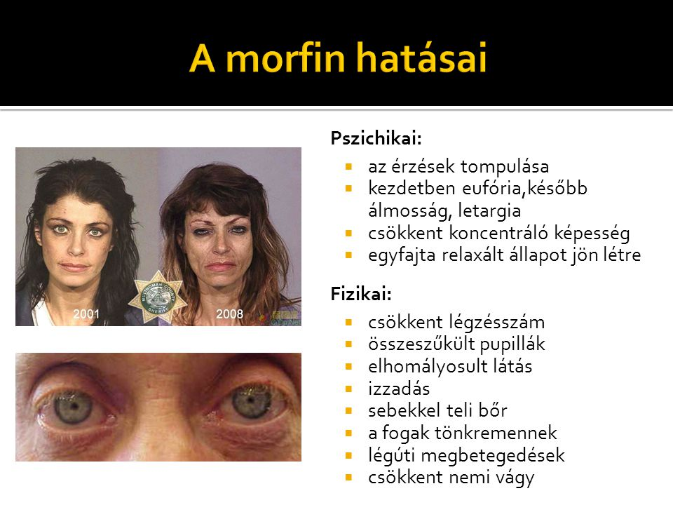 A morfin hatásai Pszichikai: az érzések tompulása