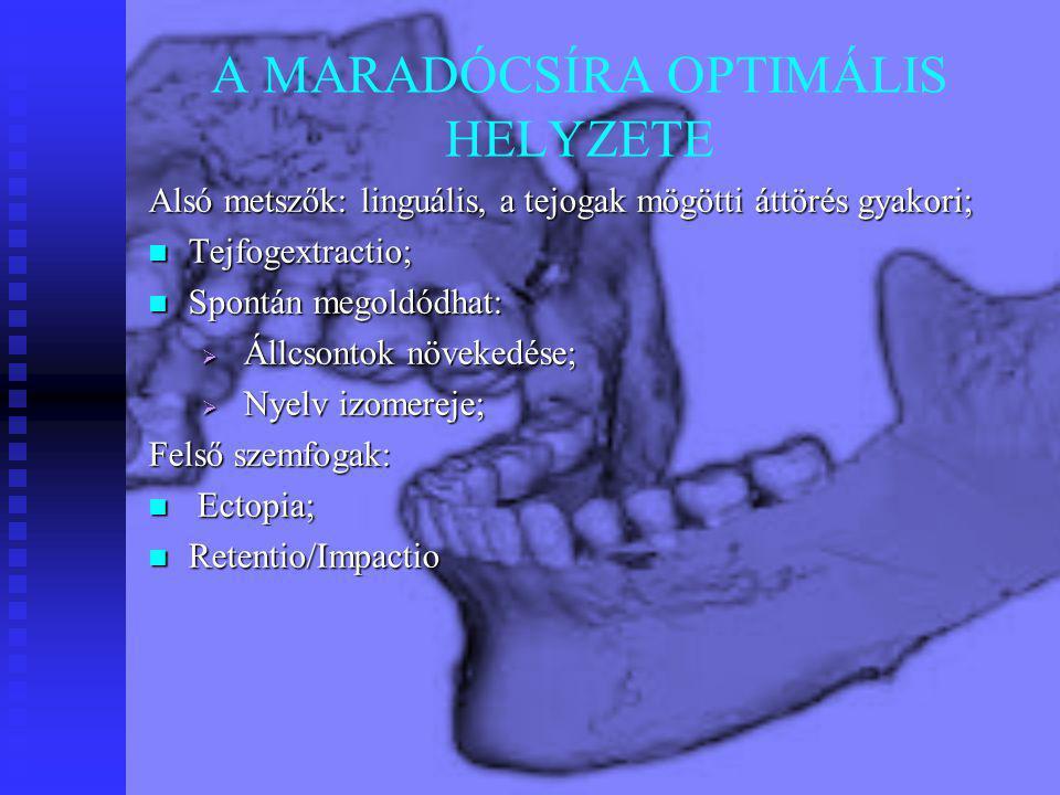 A MARADÓCSÍRA OPTIMÁLIS HELYZETE
