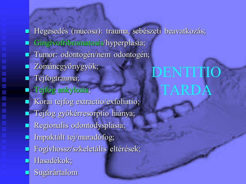DENTITIO TARDA Hegesedés (mucosa): trauma, sebészeti beavatkozás;