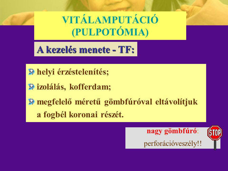 VITÁLAMPUTÁCIÓ (PULPOTÓMIA)