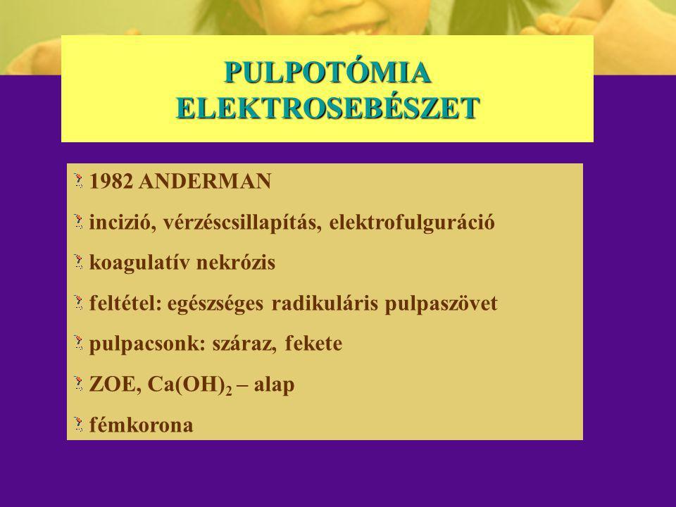PULPOTÓMIA ELEKTROSEBÉSZET