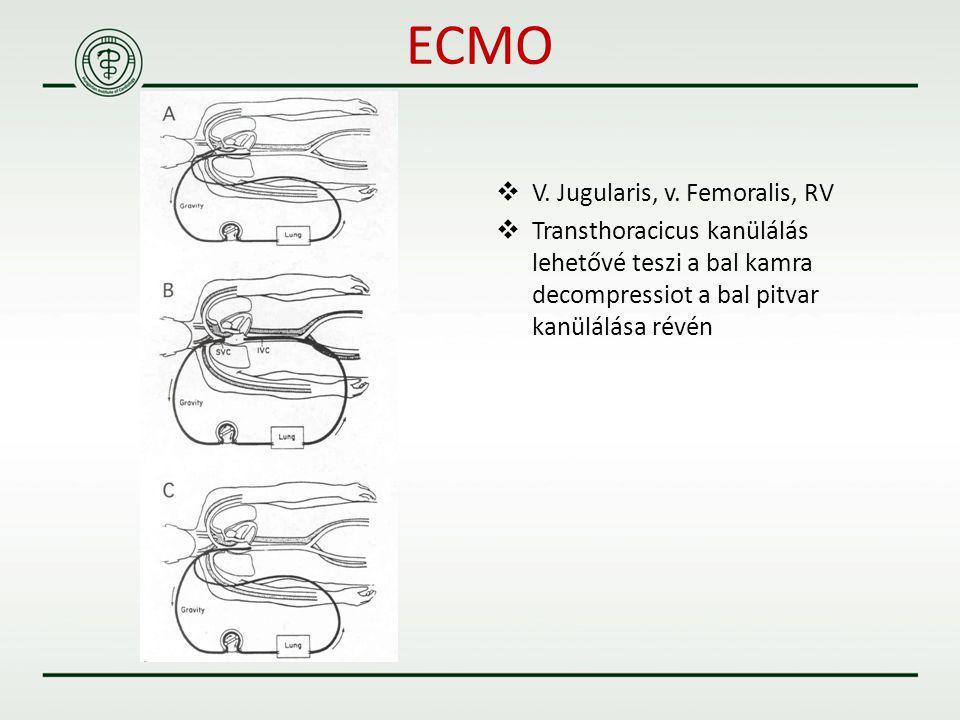 ECMO V. Jugularis, v. Femoralis, RV