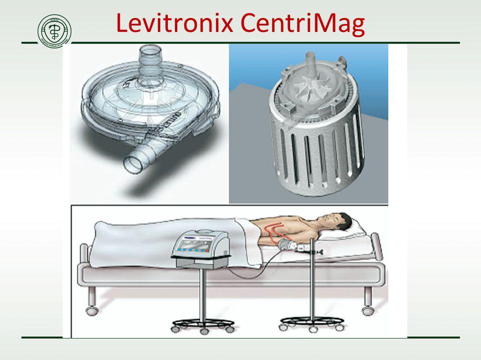 Levitronix CentriMag