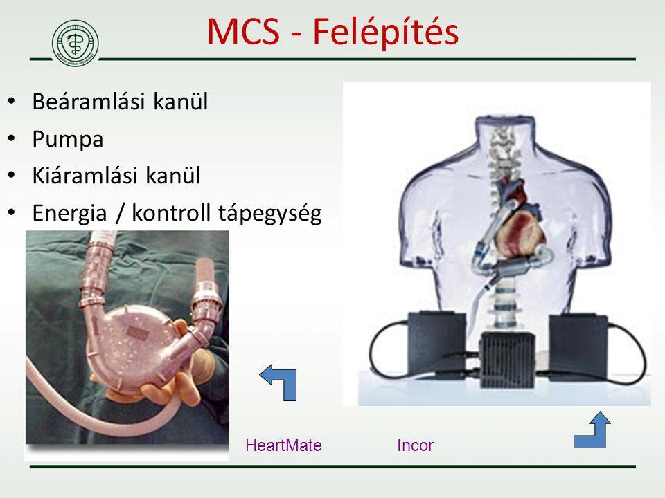 MCS - Felépítés Beáramlási kanül Pumpa Kiáramlási kanül
