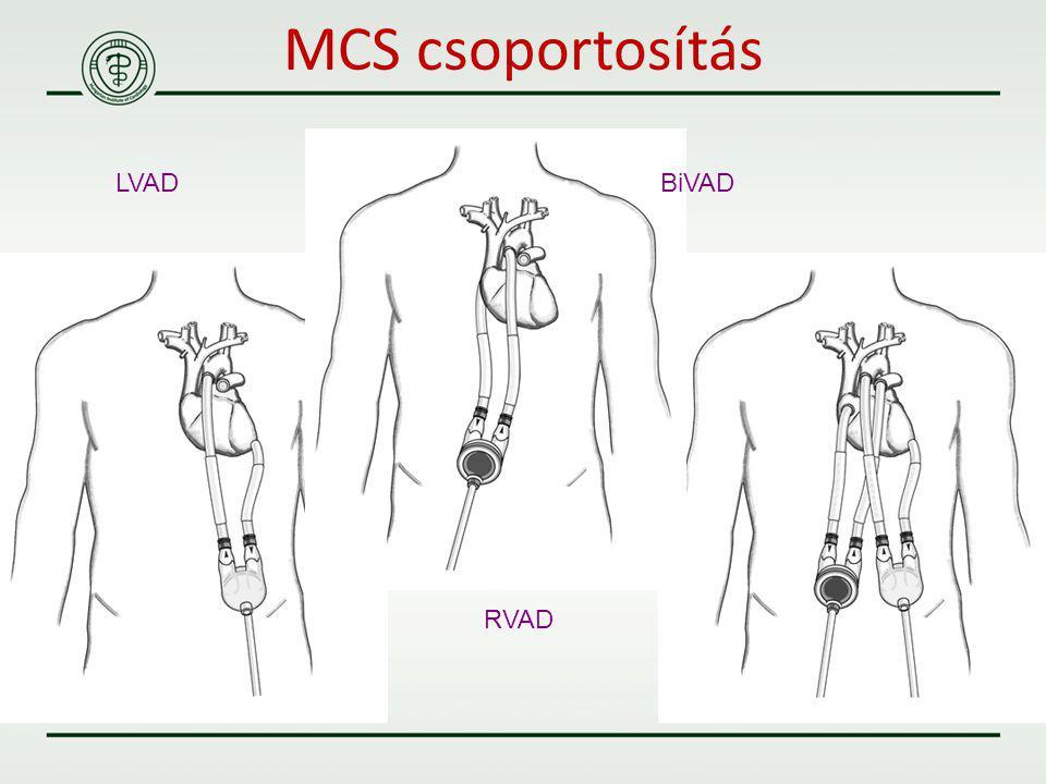 MCS csoportosítás LVAD BiVAD RVAD