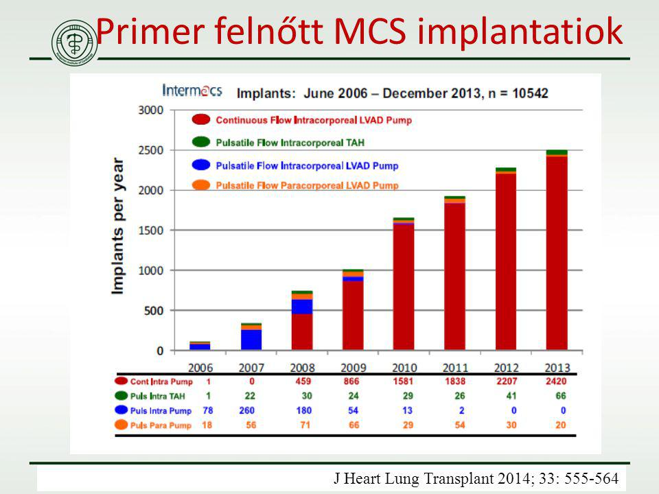 Primer felnőtt MCS implantatiok