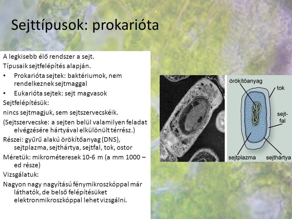 Sejttípusok: prokarióta