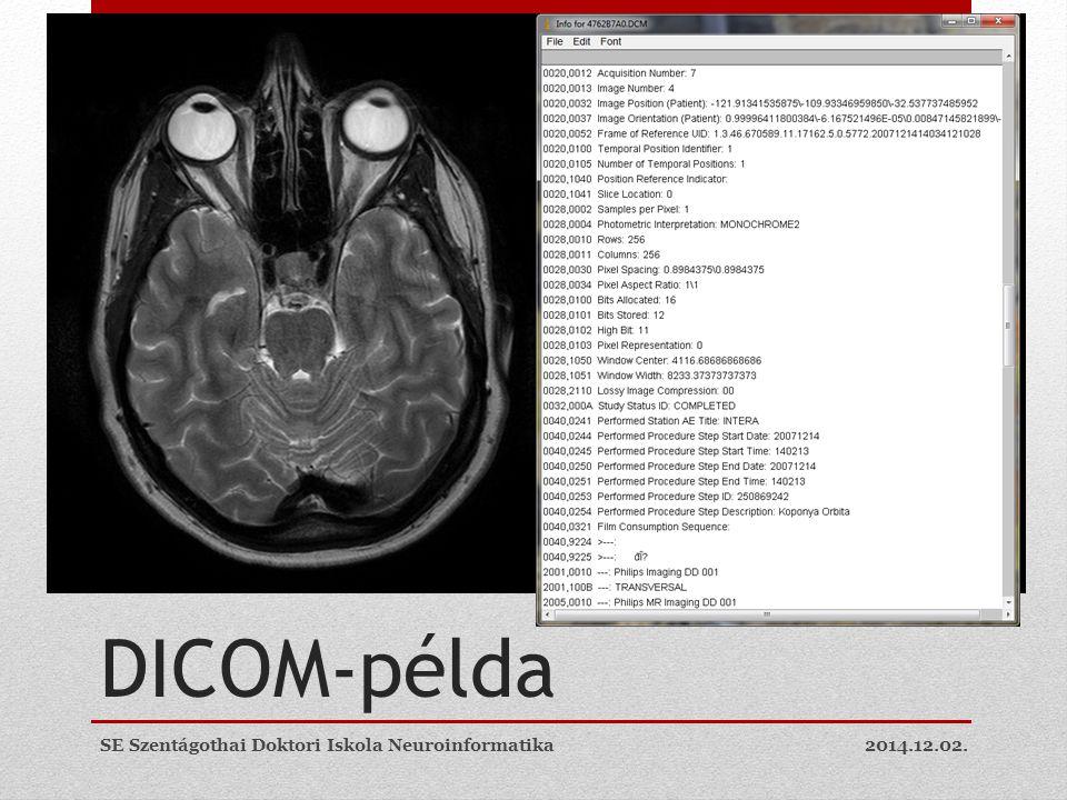 DICOM-példa SE Szentágothai Doktori Iskola Neuroinformatika