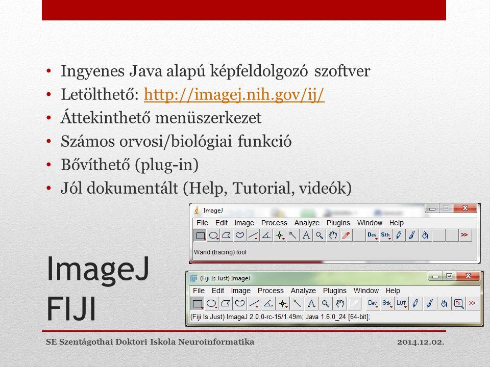 ImageJ FIJI Ingyenes Java alapú képfeldolgozó szoftver