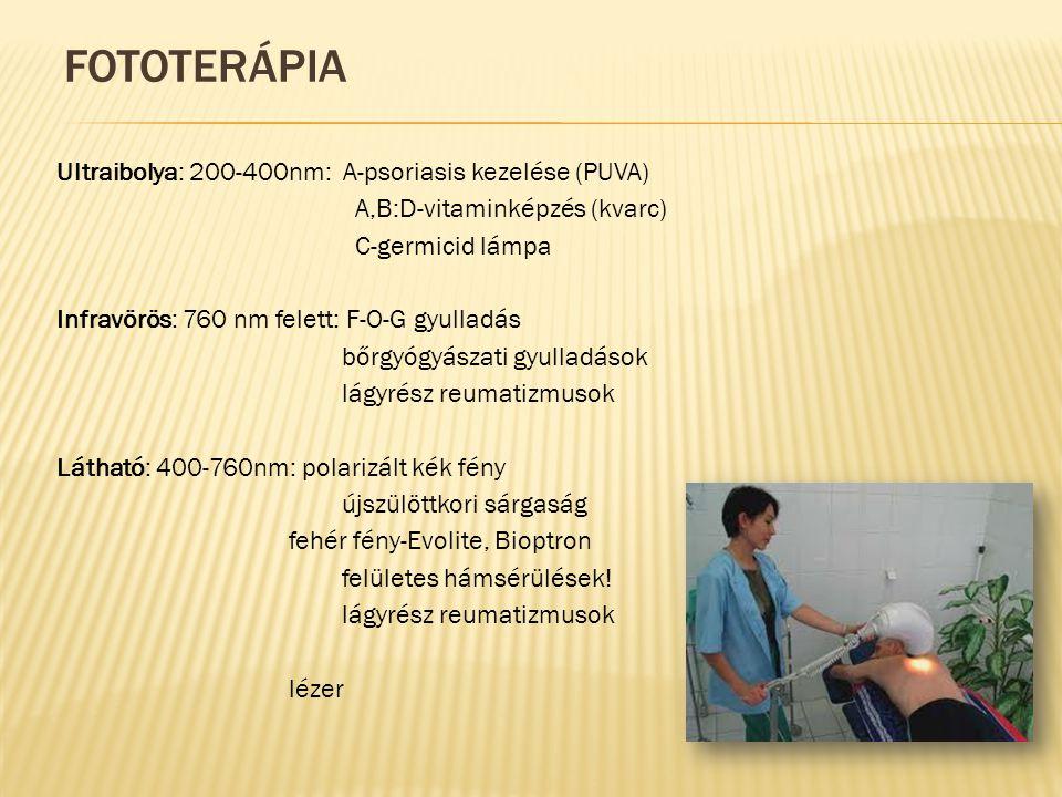 Fototerápia Ultraibolya: 200-400nm: A-psoriasis kezelése (PUVA)