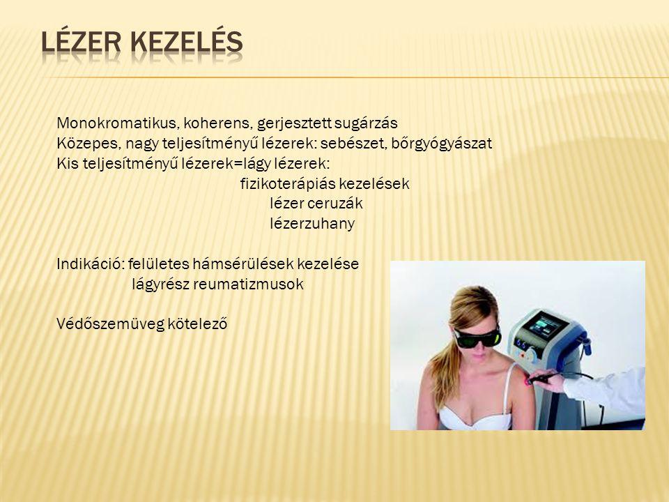 Lézer kezelés Monokromatikus, koherens, gerjesztett sugárzás
