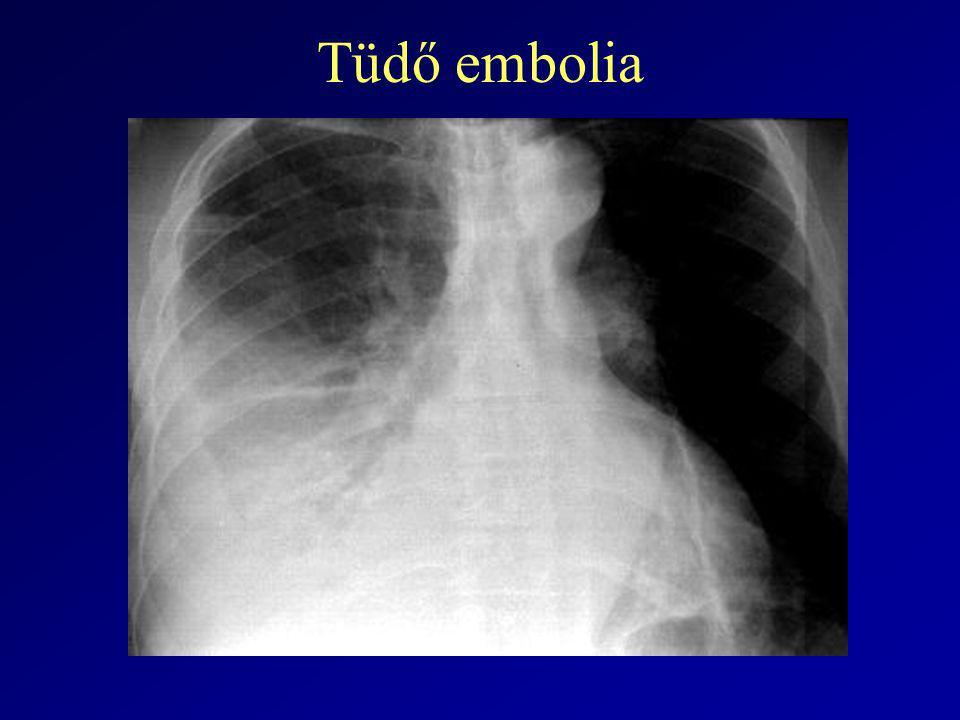 Tüdő embolia