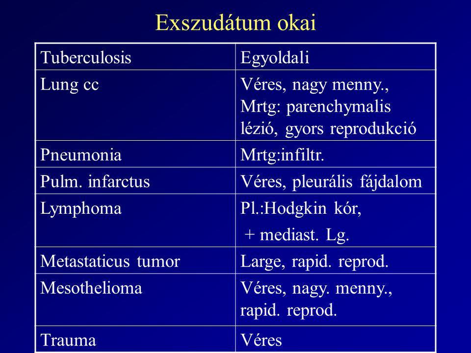 Exszudátum okai Tuberculosis Egyoldali Lung cc