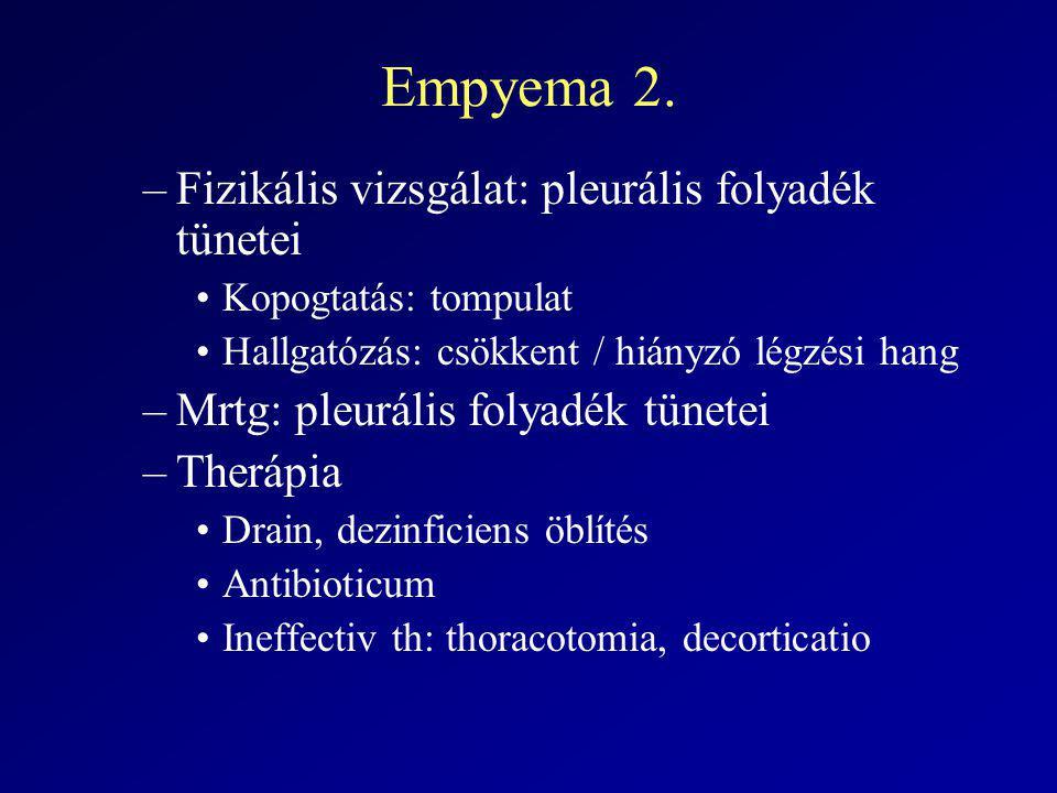 Empyema 2. Fizikális vizsgálat: pleurális folyadék tünetei