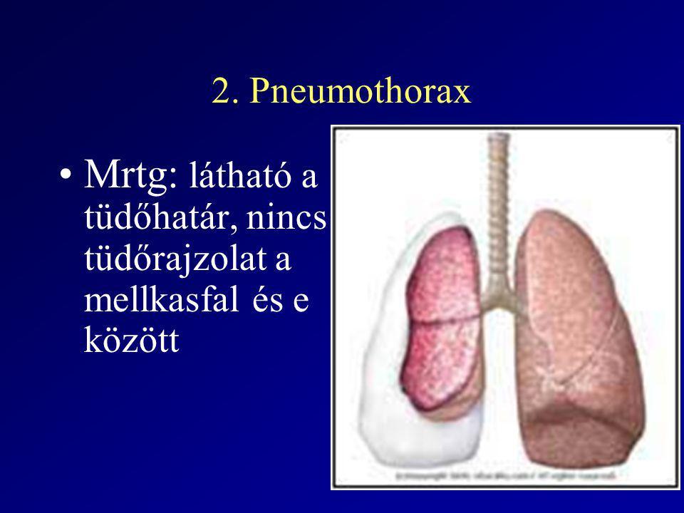Mrtg: látható a tüdőhatár, nincs tüdőrajzolat a mellkasfal és e között