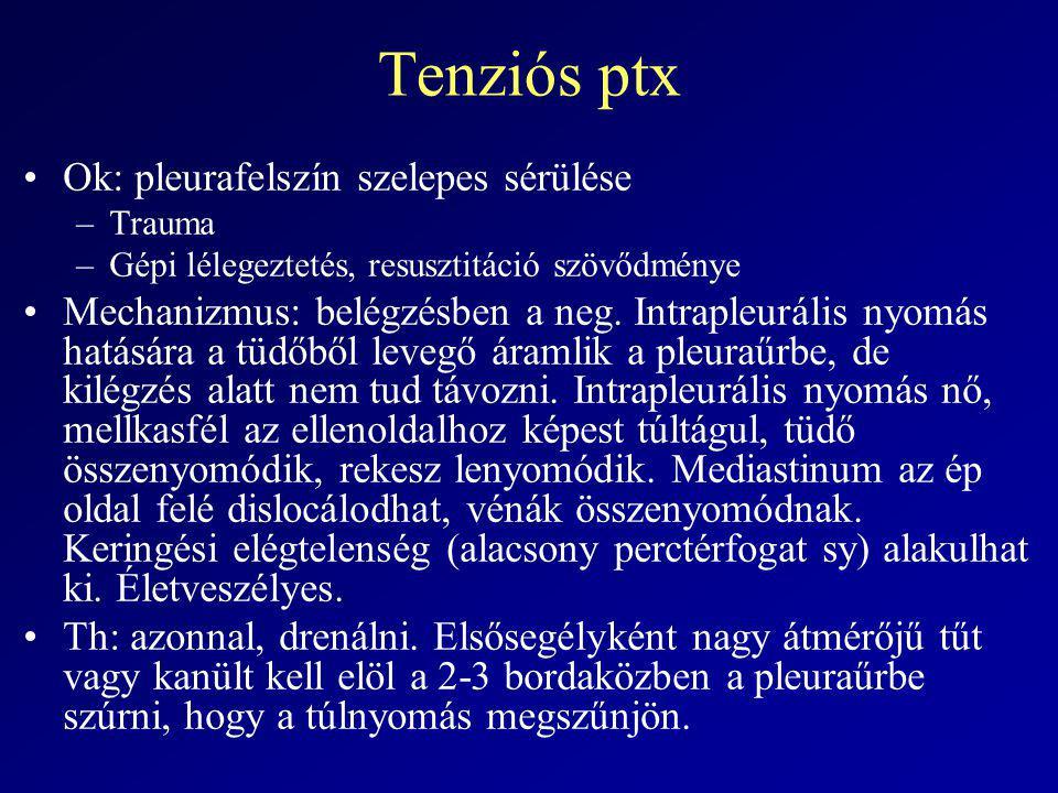Tenziós ptx Ok: pleurafelszín szelepes sérülése