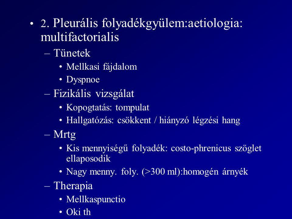 2. Pleurális folyadékgyülem:aetiologia: multifactorialis Tünetek