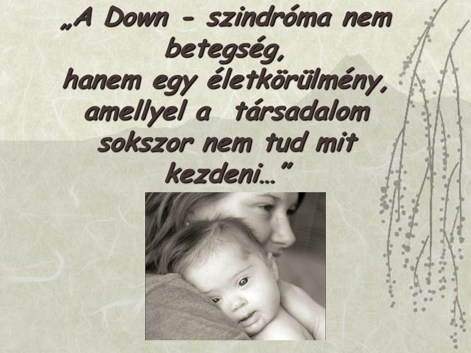 """""""A Down - szindróma nem betegség, hanem egy életkörülmény,"""