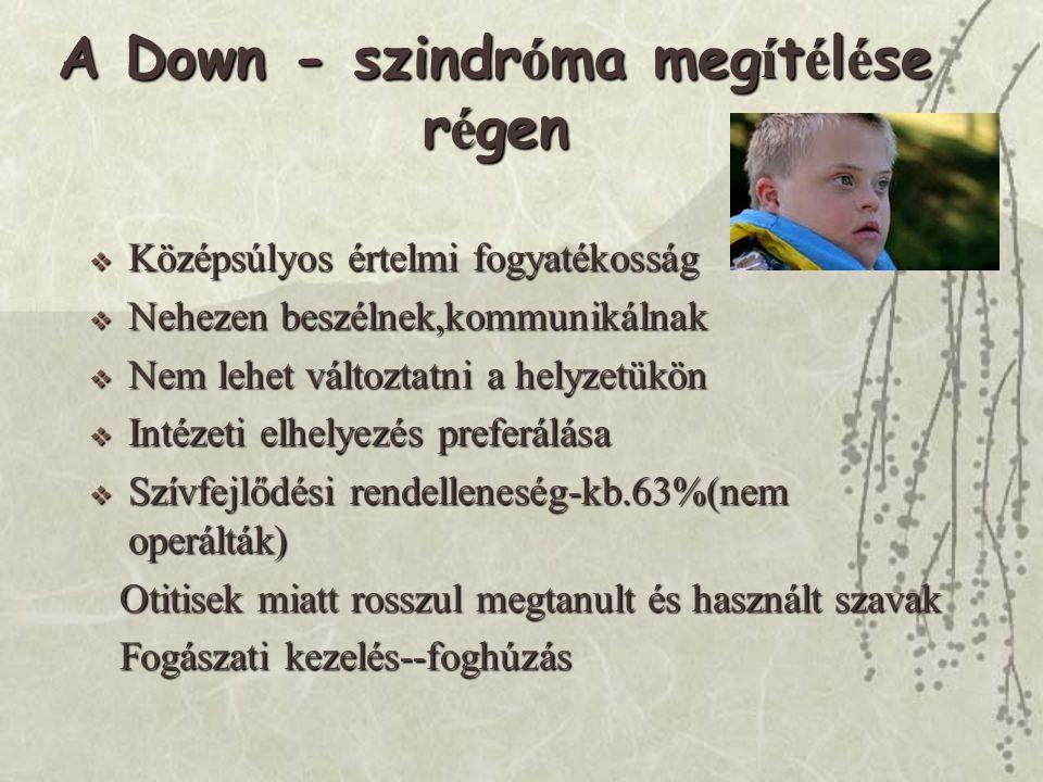 A Down - szindróma megítélése régen