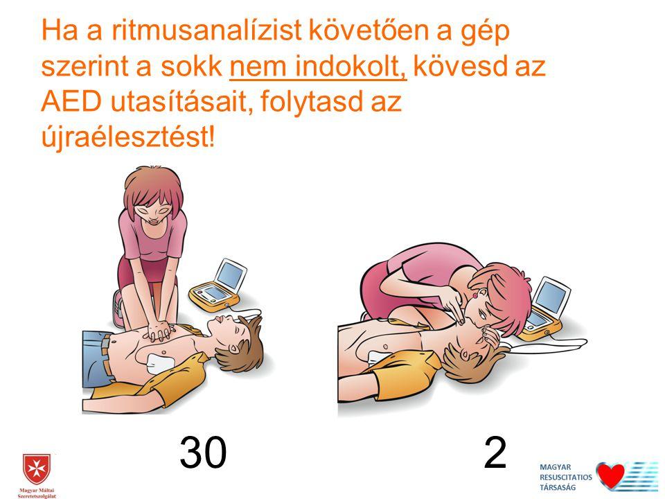 Ha a ritmusanalízist követően a gép szerint a sokk nem indokolt, kövesd az AED utasításait, folytasd az újraélesztést!