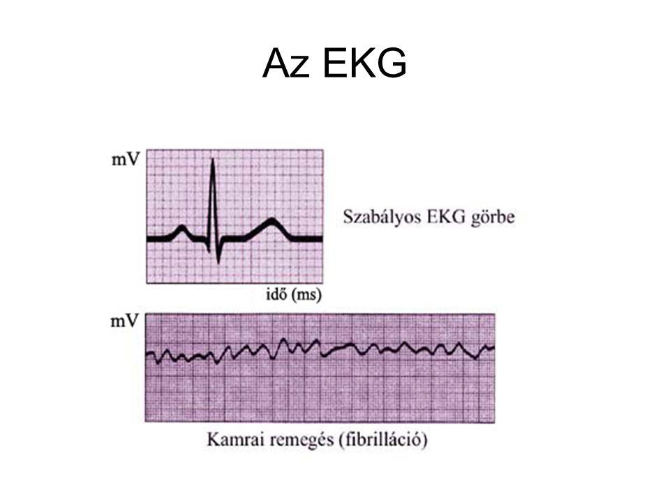 Az EKG