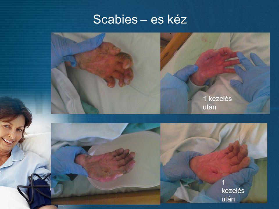 Scabies – es kéz 1 kezelés után 1 kezelés után