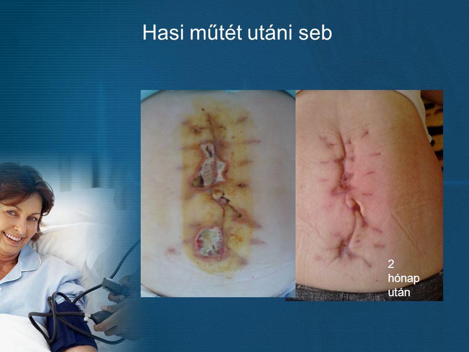 Hasi műtét utáni seb 2 hónap után