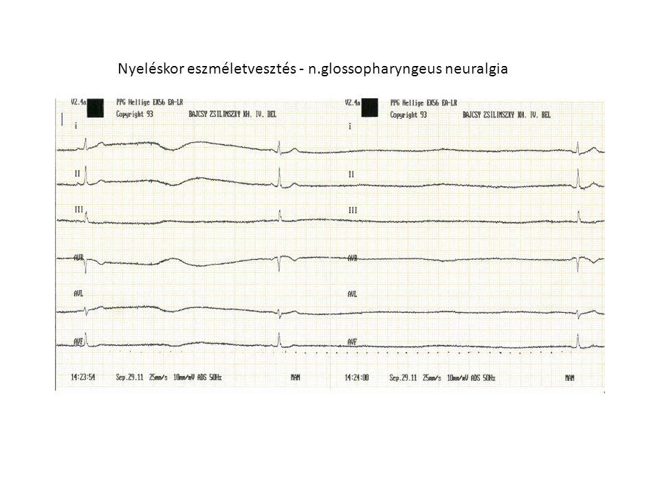 Nyeléskor eszméletvesztés - n.glossopharyngeus neuralgia
