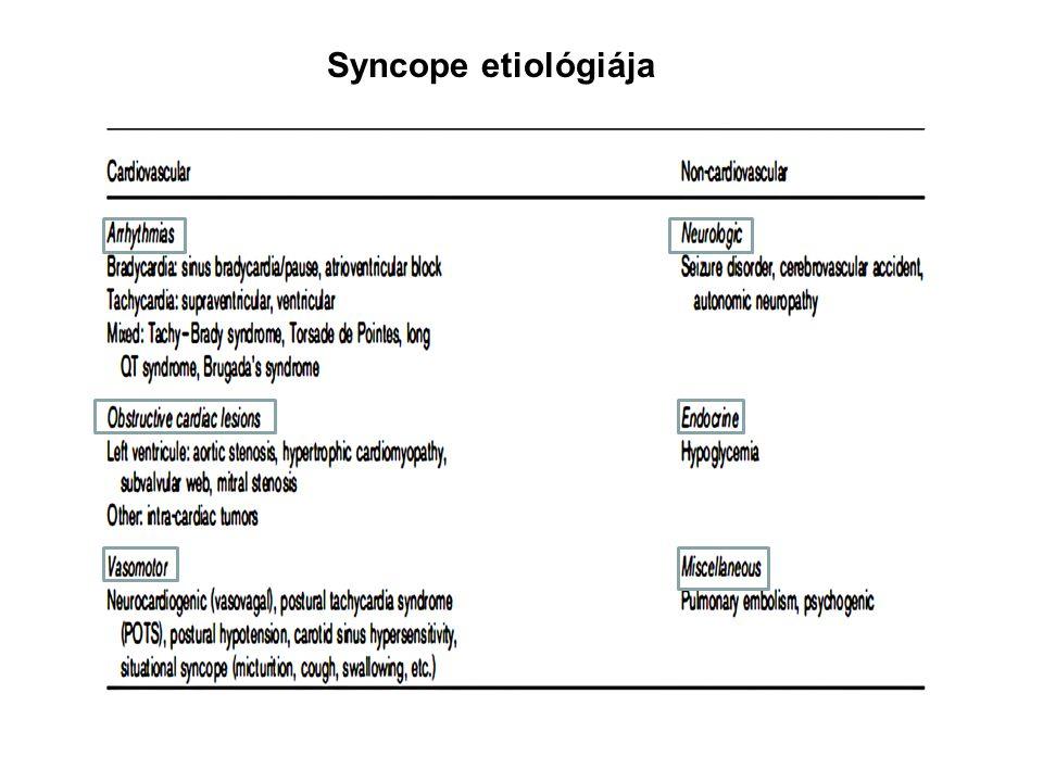 Syncope etiológiája