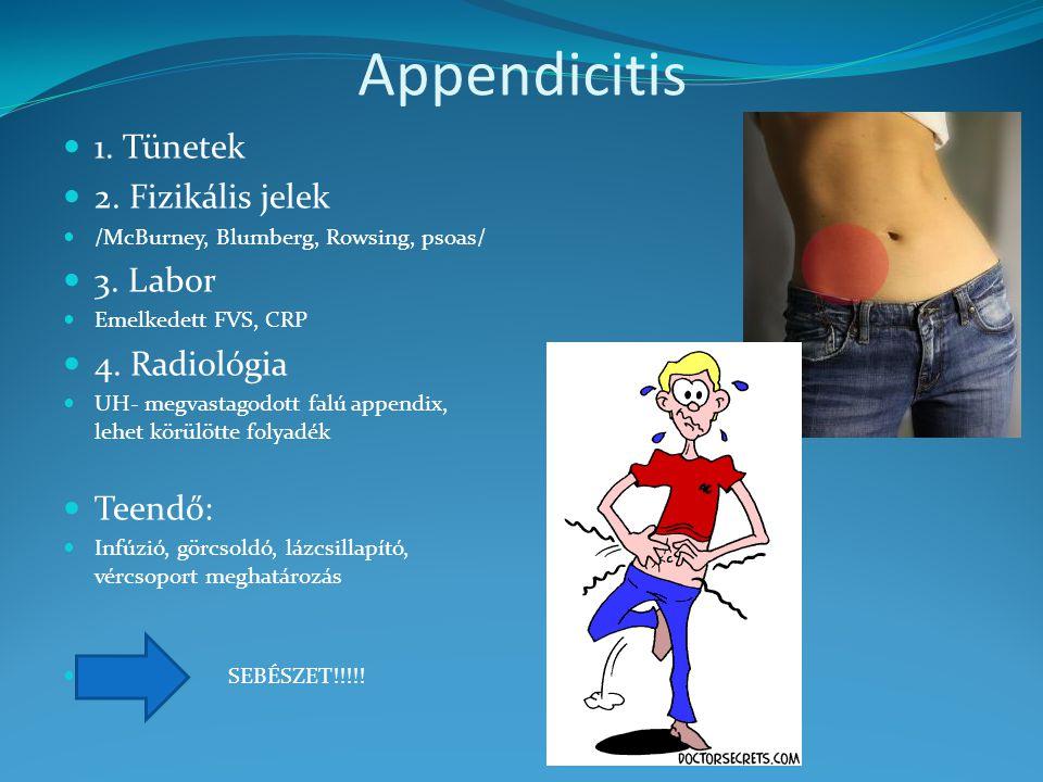 Appendicitis 1. Tünetek 2. Fizikális jelek 3. Labor 4. Radiológia