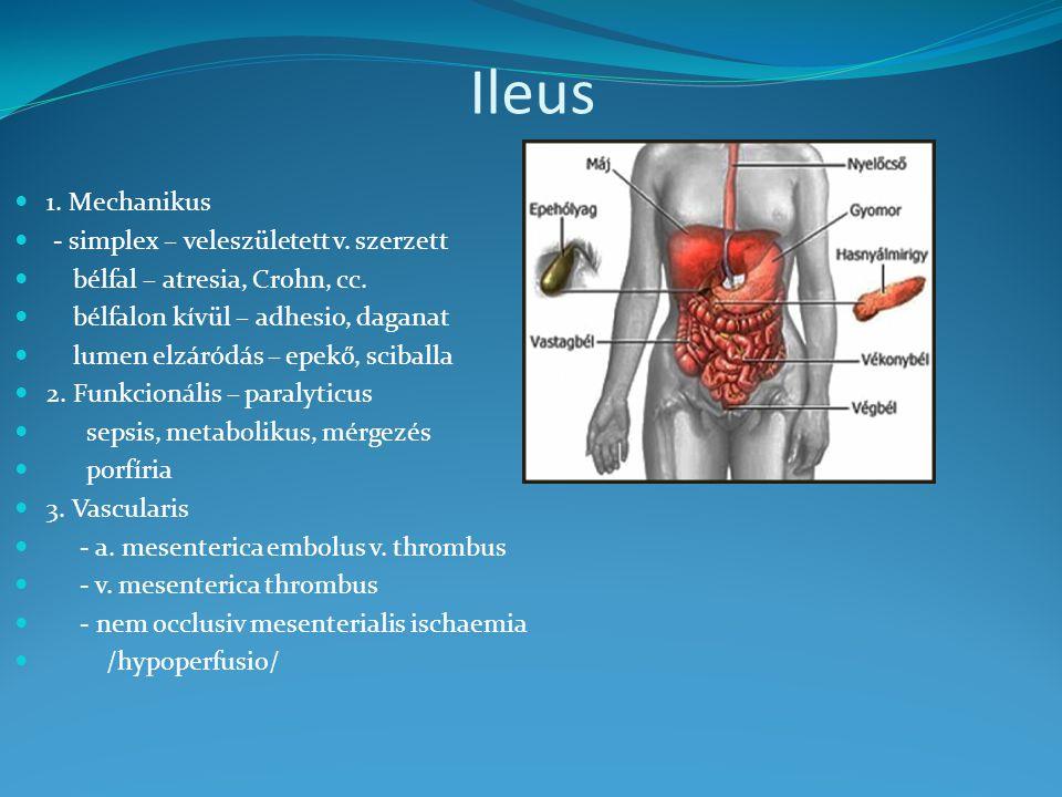Ileus 1. Mechanikus - simplex – veleszületett v. szerzett