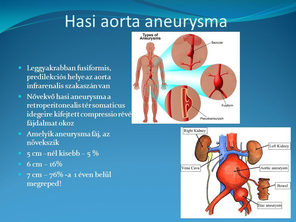 Hasi aorta aneurysma Leggyakrabban fusiformis, predilekciós helye az aorta infrarenalis szakaszán van.