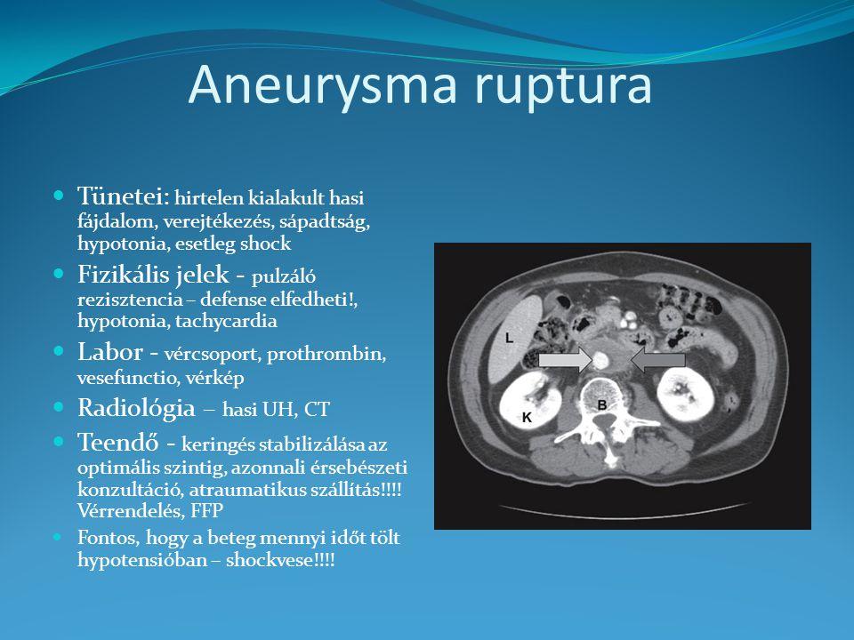 Aneurysma ruptura Tünetei: hirtelen kialakult hasi fájdalom, verejtékezés, sápadtság, hypotonia, esetleg shock.